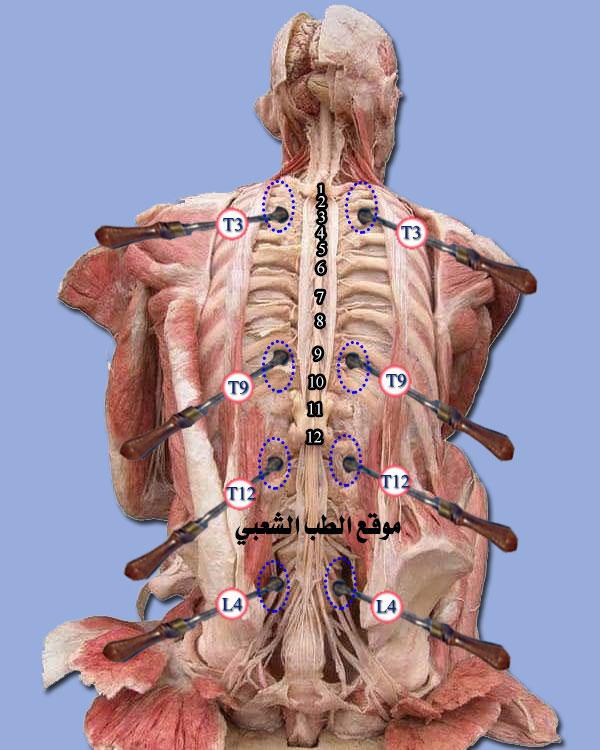 فيلسوف ربان زقزقة الفقرات الصدرية اعراض Dsvdedommel Com