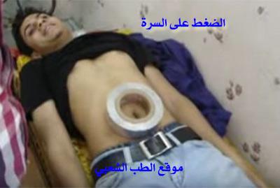 الرضاخ شلع السرة ملع السرة أبو رضاخ بو مزوي